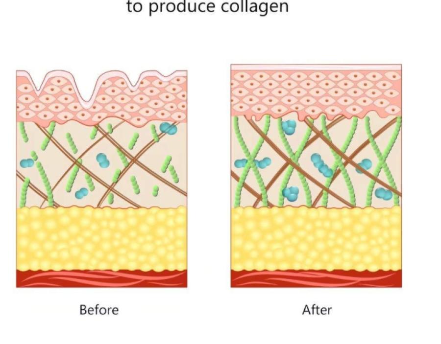 Mikrosrovės veido masažuoklis